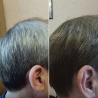 Dramatic Color Changes for Grey Hair